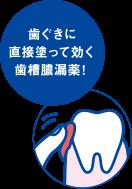 歯ぐきに直接塗って効く歯槽膿漏薬